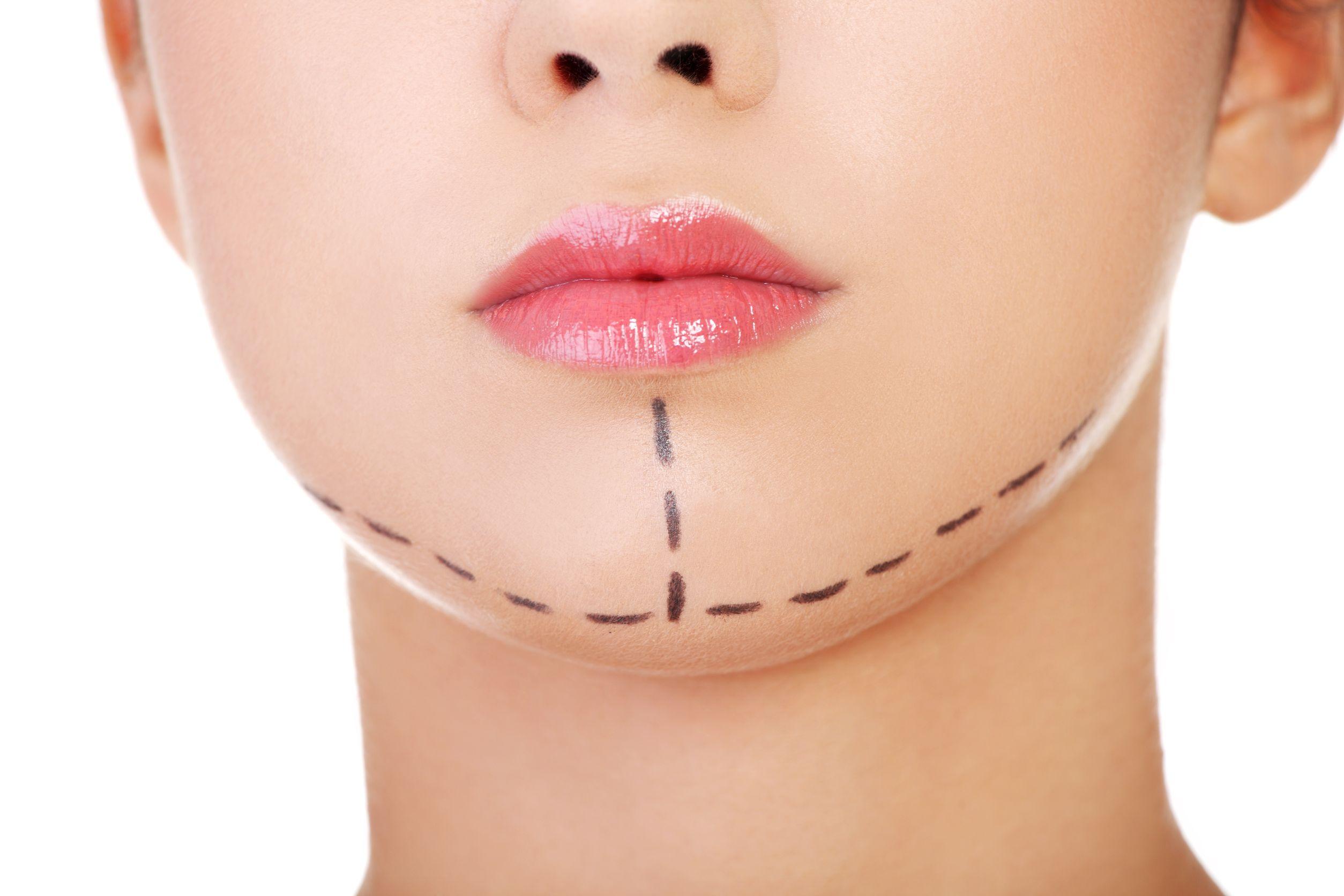 Bródka (implant twarzowy)