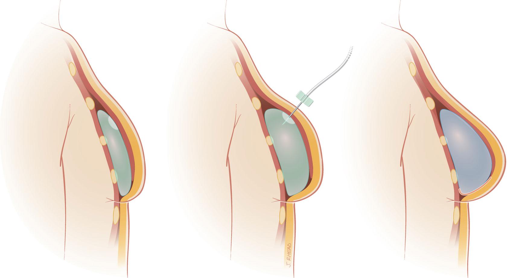 powiększenie piersi implanty 1dayclinic szpital gdańsk