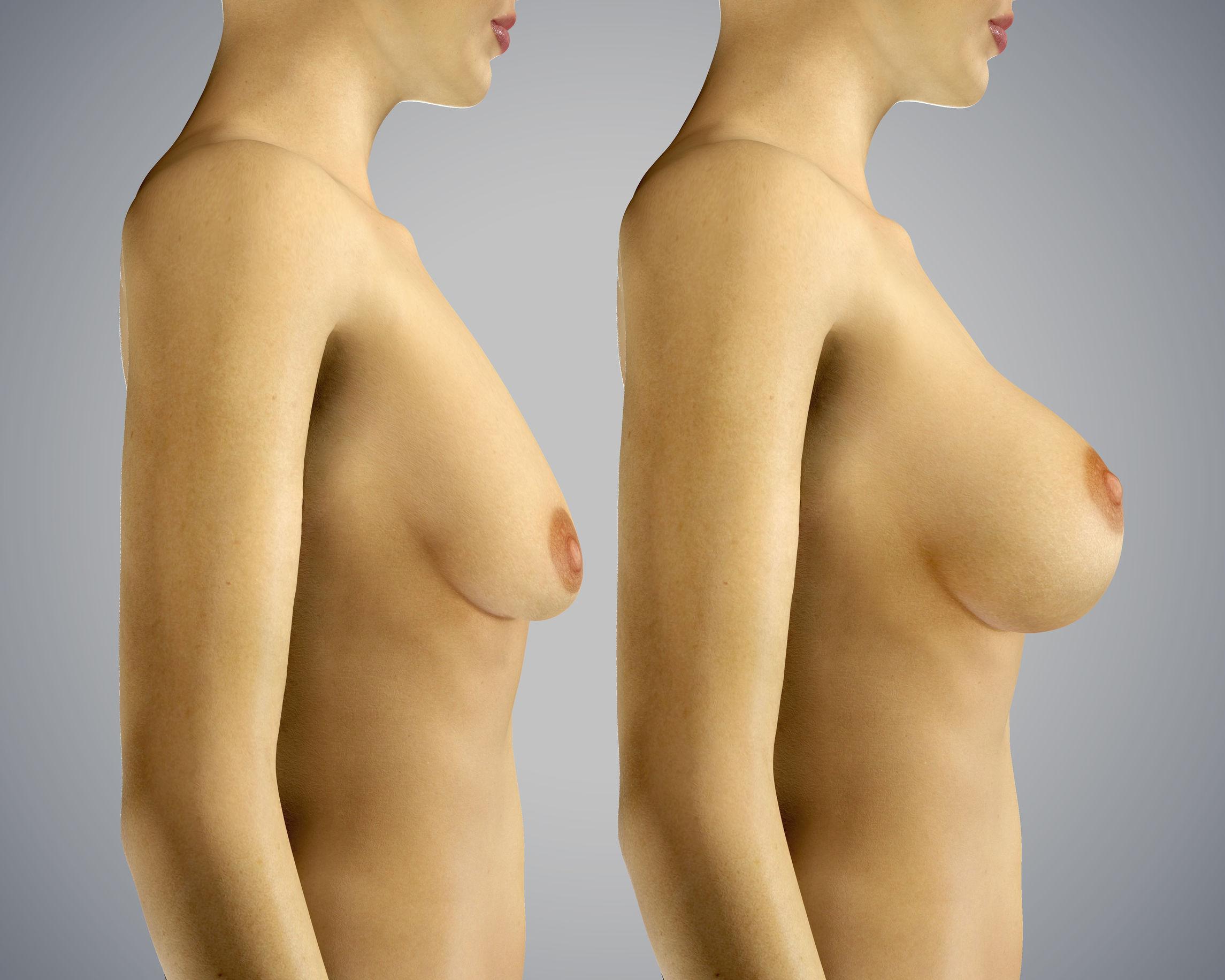 Powiększenie piersi (tłuszczem pacjentki)
