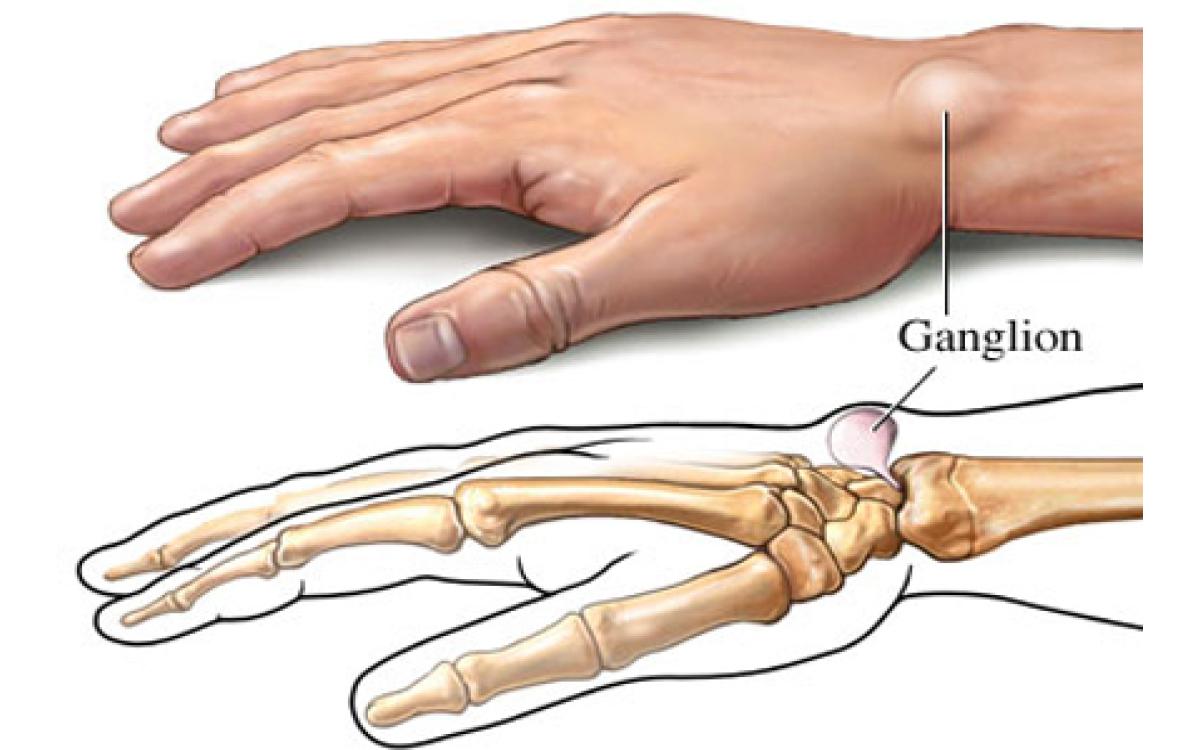 Zabiegi na tkankach miękkich (usuniecie ganglionów, tłuszczaków, kaletek, itp)